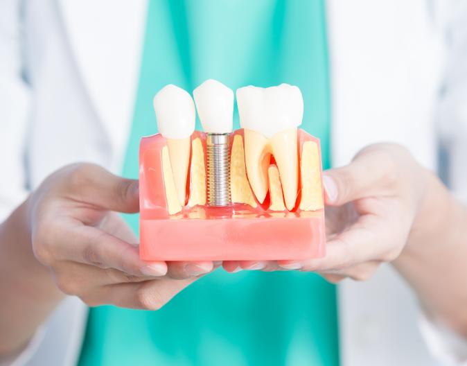 Les implants dentaires, une option polyvalente et durable