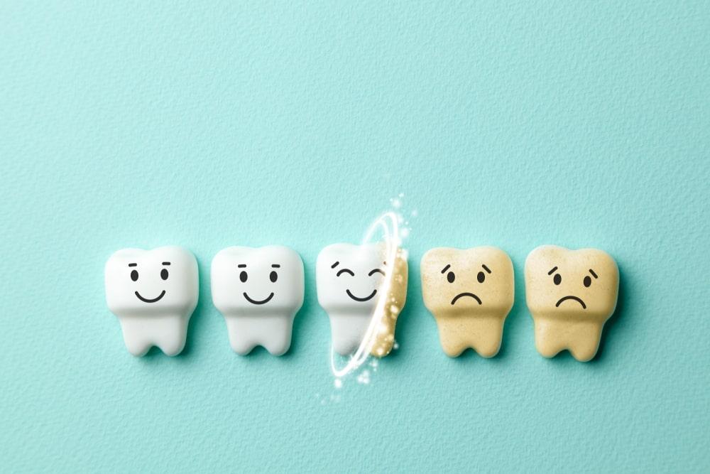 petites dents qui blanchissent